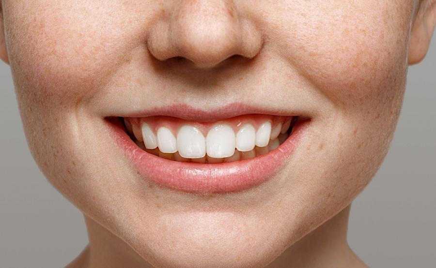 Piękne, białe zęby