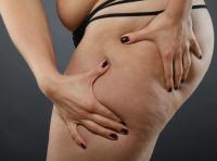 Cellulit cellulitowi nierówny