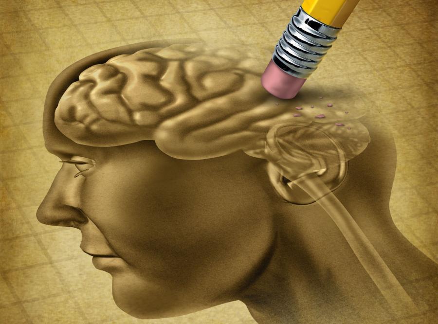 mózg alzheimer