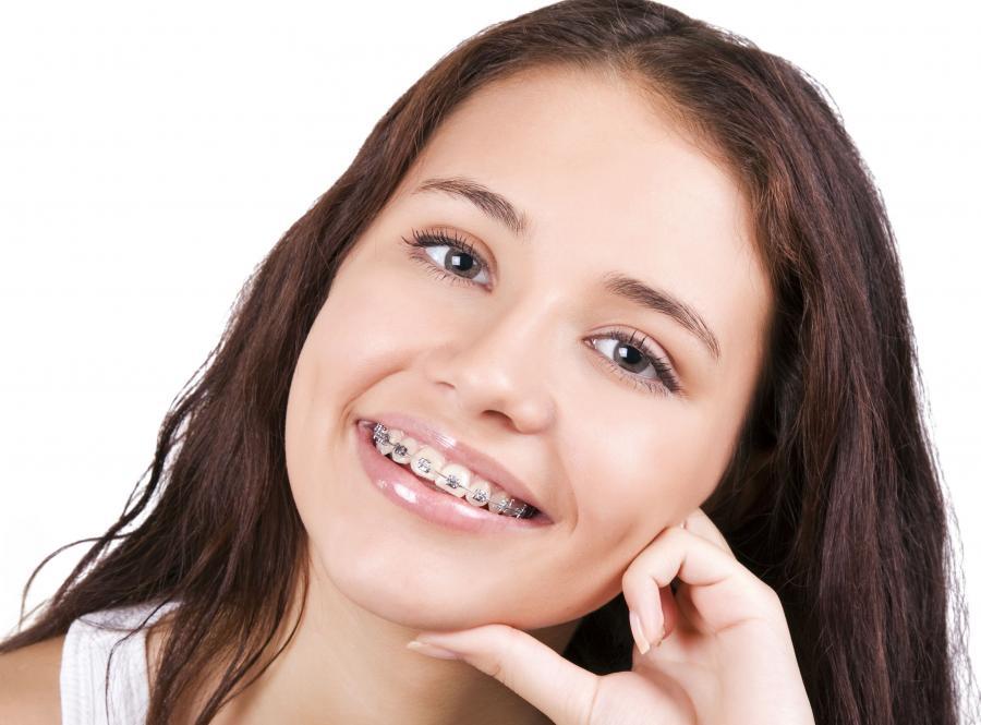 MIT 5 - Aparat ortodontyczny jest zawsze widoczny