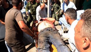 Ranni po bombardowaniu w Aleppo